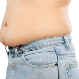 Bariatric Surgery Helps Teens Fight Obesity2